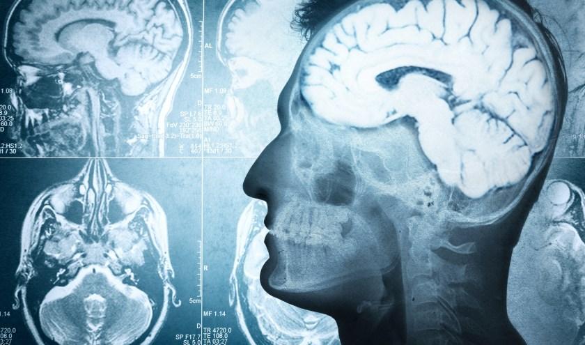 Ons brein staat nog in de oertijdstand maar dit kan je zelf veranderen.