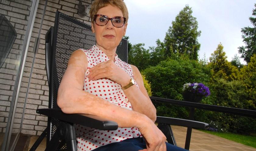 Carola Kipp-Broekman (62) uit Apeldoorn heeft sinds 1985 vitiligo. (foto Gert Perdon)